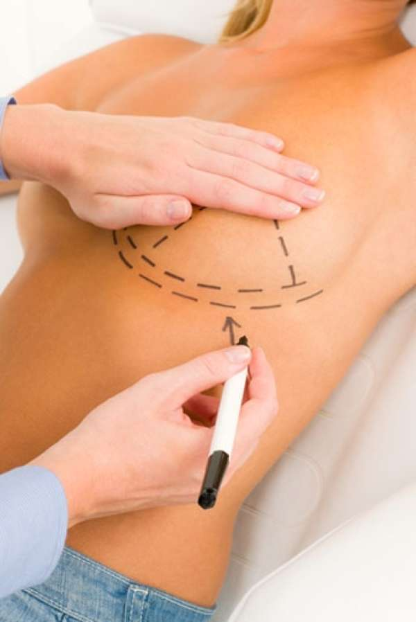 Breast Implant Profiles
